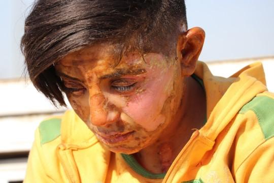 Kendisini ihbar eden genç kızı üzerine benzin döküp yakan cani yakalandı